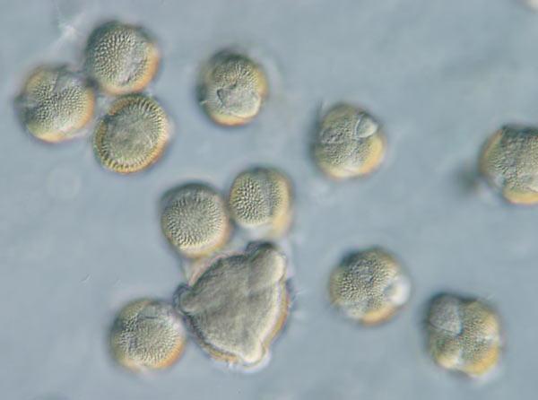 Rapspollen unter dem Mikroskop